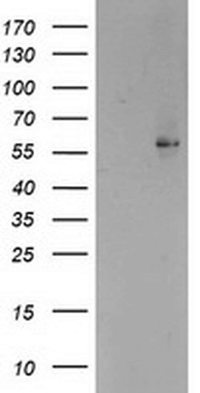 PPARA Mouse anti-Human, Mouse, Clone: OTI1E8, liquid, TrueMAB  30 µL;