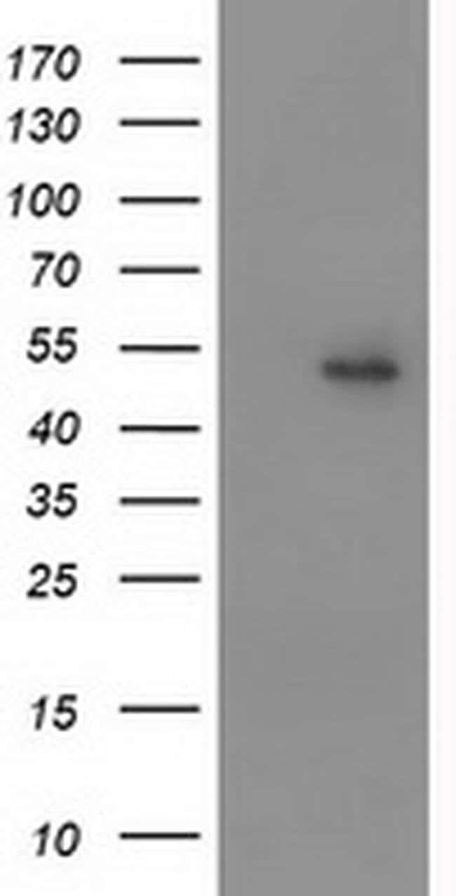PPARA Mouse anti-Human, Clone: OTI1E11, liquid, TrueMAB  100 µL; Unconjugated