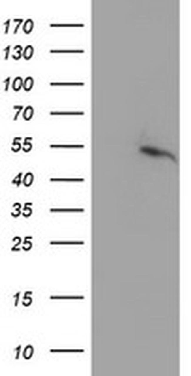 PPARA Mouse anti-Human, Clone: OTI2E7, liquid, TrueMAB  100 µL; Unconjugated