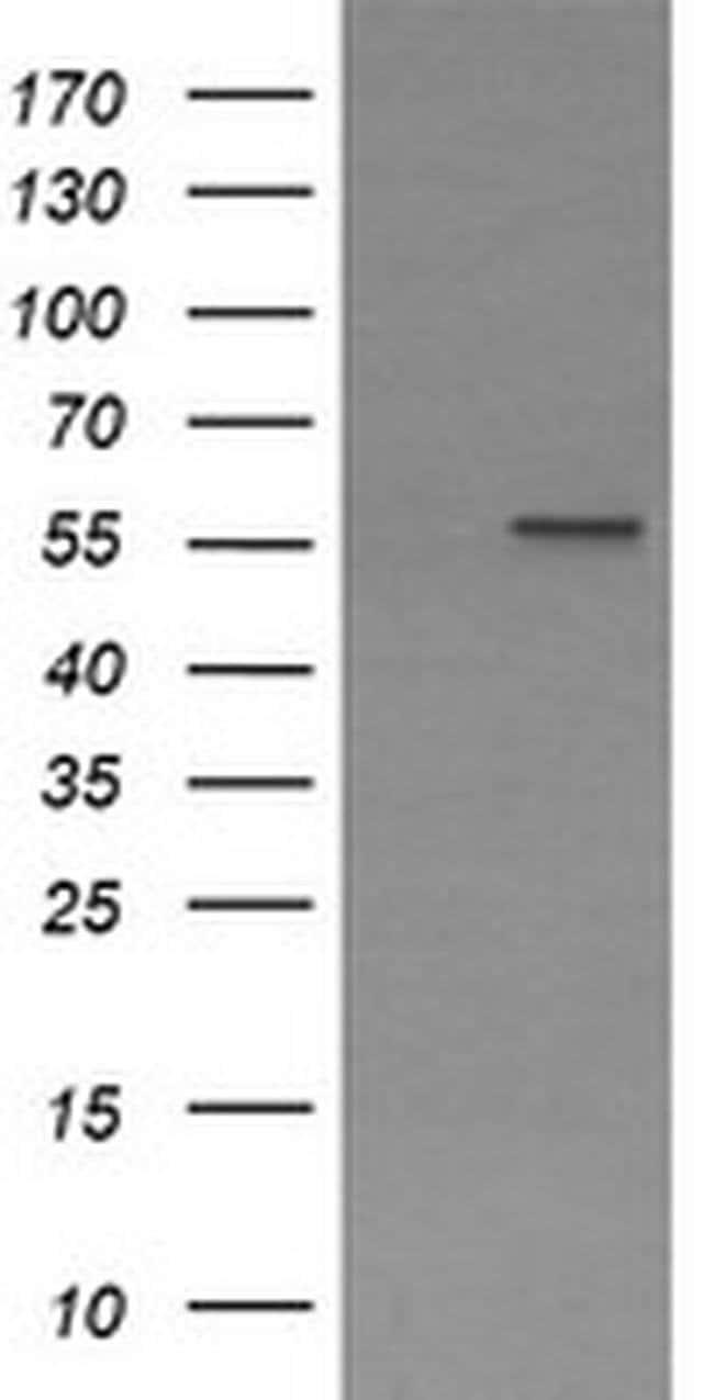 PPAT Mouse anti-Human, Clone: OTI2C2, liquid, TrueMAB  100 µL; Unconjugated