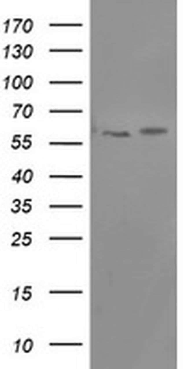PPAT Mouse anti-Human, Clone: OTI1C7, liquid, TrueMAB  100 µL; Unconjugated