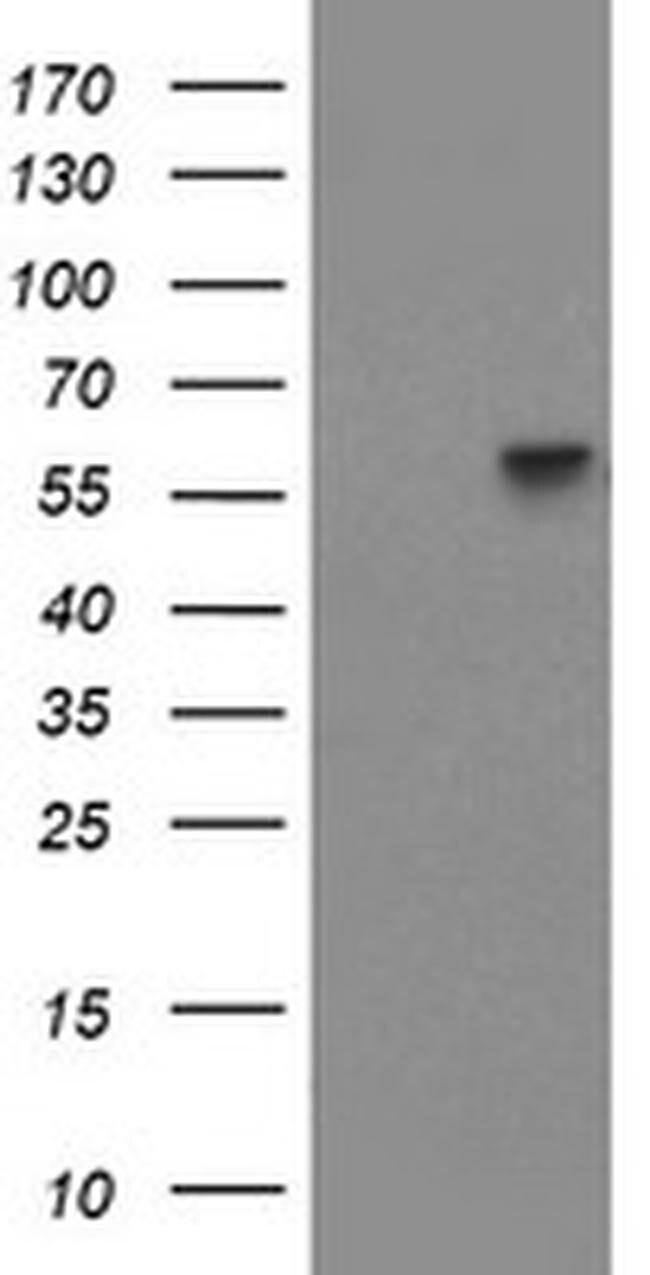 PPAT Mouse anti-Human, Clone: OTI1E1, liquid, TrueMAB  100 µL; Unconjugated
