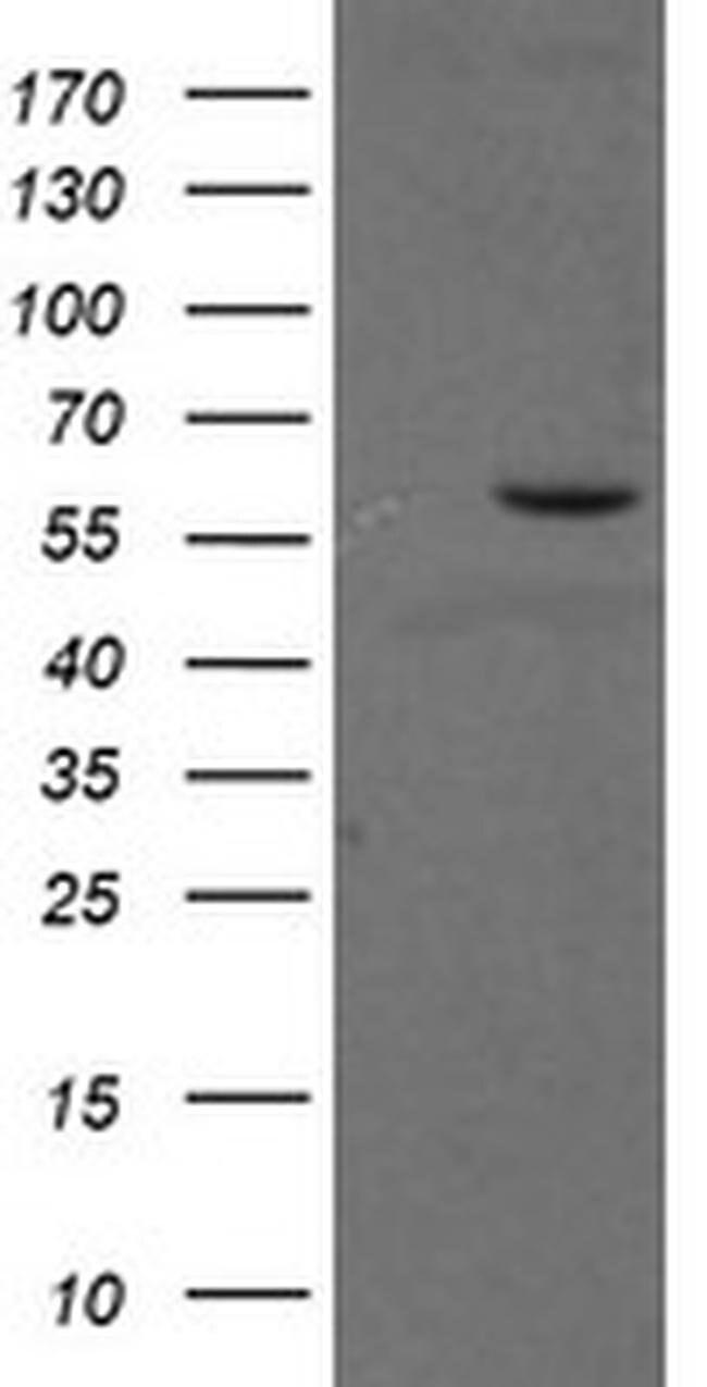 PPAT Mouse anti-Human, Mouse, Clone: OTI1B2, liquid, TrueMAB  100 µL;