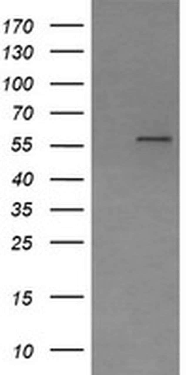 PPAT Mouse anti-Human, Clone: OTI1B11, liquid, TrueMAB  100 µL; Unconjugated