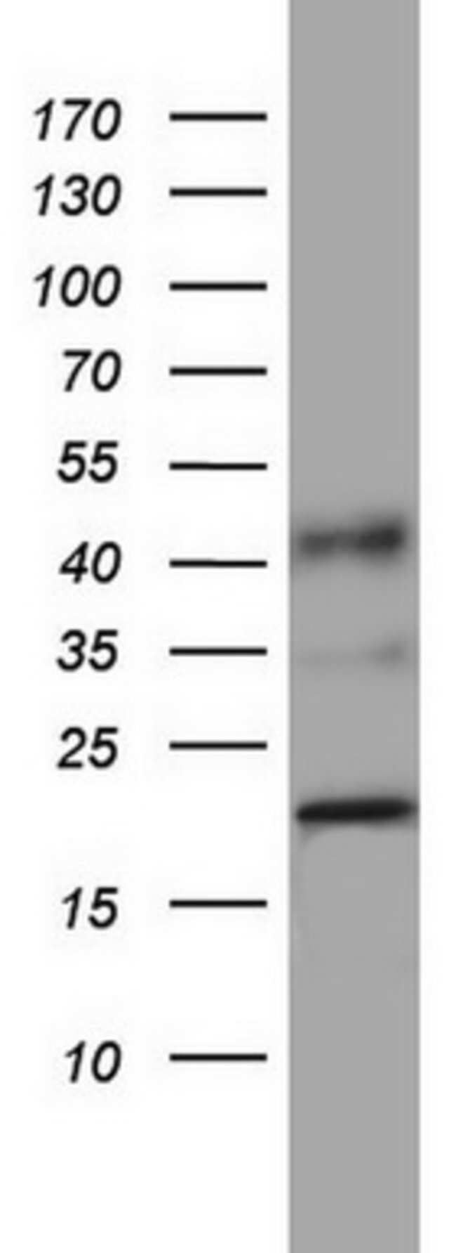 PPIH Mouse anti-Human, Clone: OTI1C6, lyophilized, TrueMAB  100 µg;