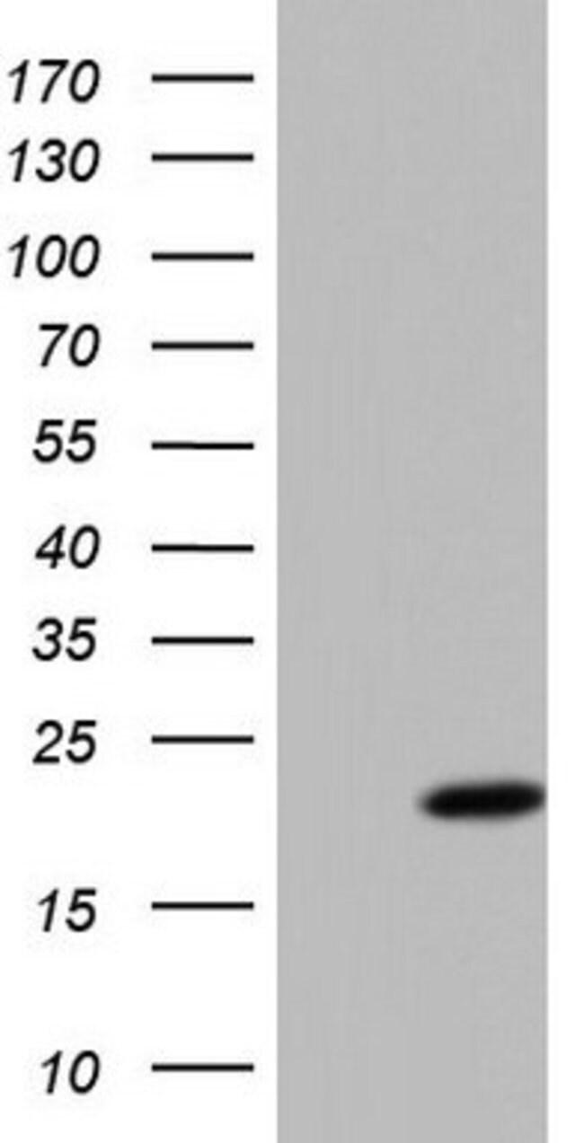 PPIL1 Mouse anti-Human, Clone: OTI2D1, lyophilized, TrueMAB  100 µg;