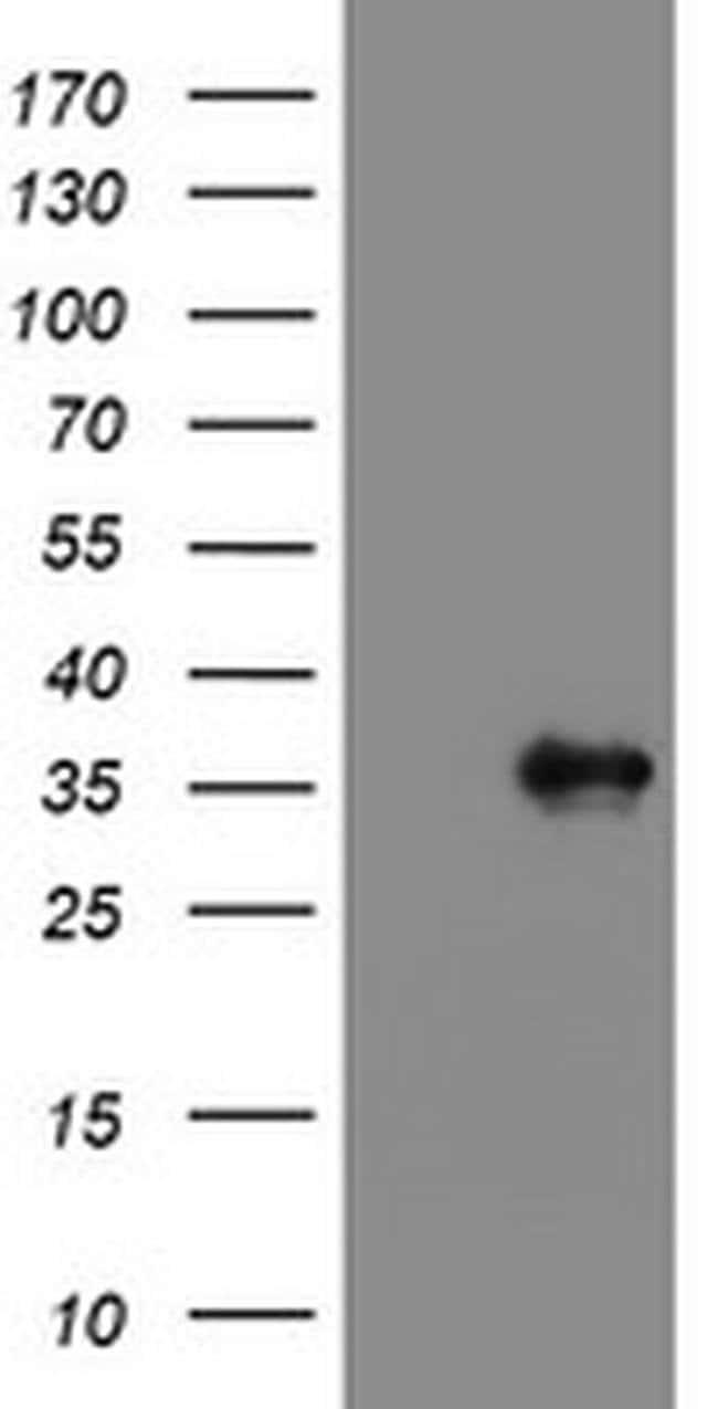 PPIL6 Mouse anti-Human, Clone: OTI4C1, liquid, TrueMAB  100 µL; Unconjugated
