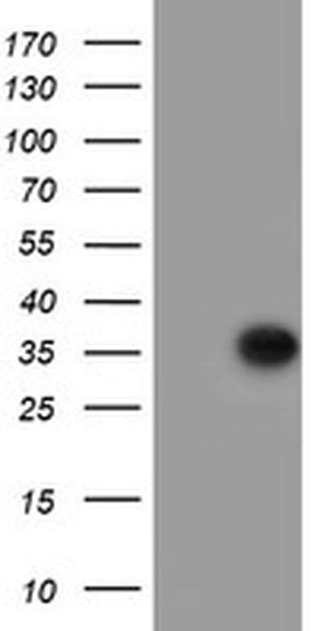 PPIL6 Mouse anti-Human, Clone: OTI2G3, liquid, TrueMAB  100 µL; Unconjugated