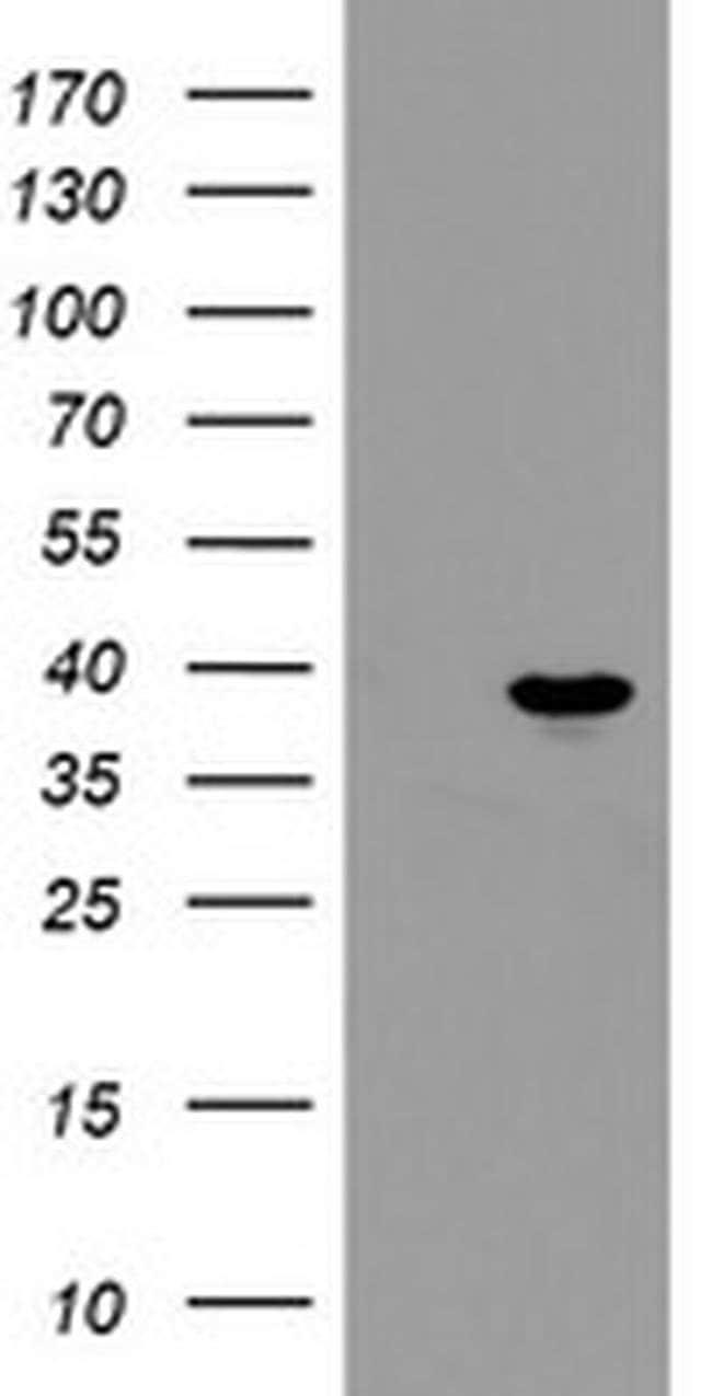 PPIL6 Mouse anti-Human, Clone: OTI4F2, liquid, TrueMAB  100 µL; Unconjugated