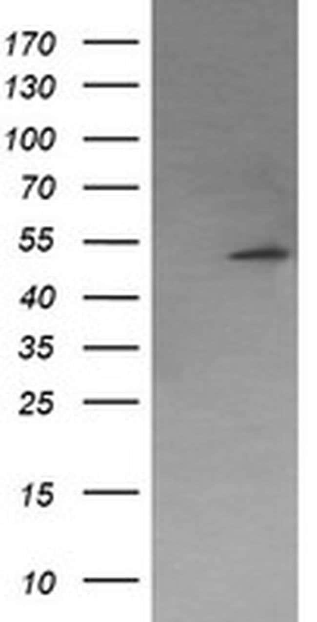 PPM1B Mouse anti-Human, Clone: OTI3C9, liquid, TrueMAB  100 µL; Unconjugated
