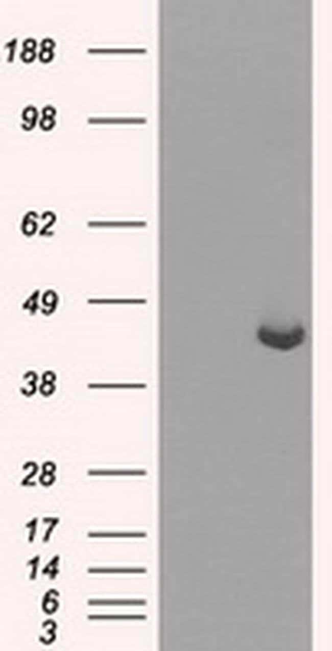PPME1 Mouse anti-Human, Clone: OTI10B2, liquid, TrueMAB  100 µL; Unconjugated