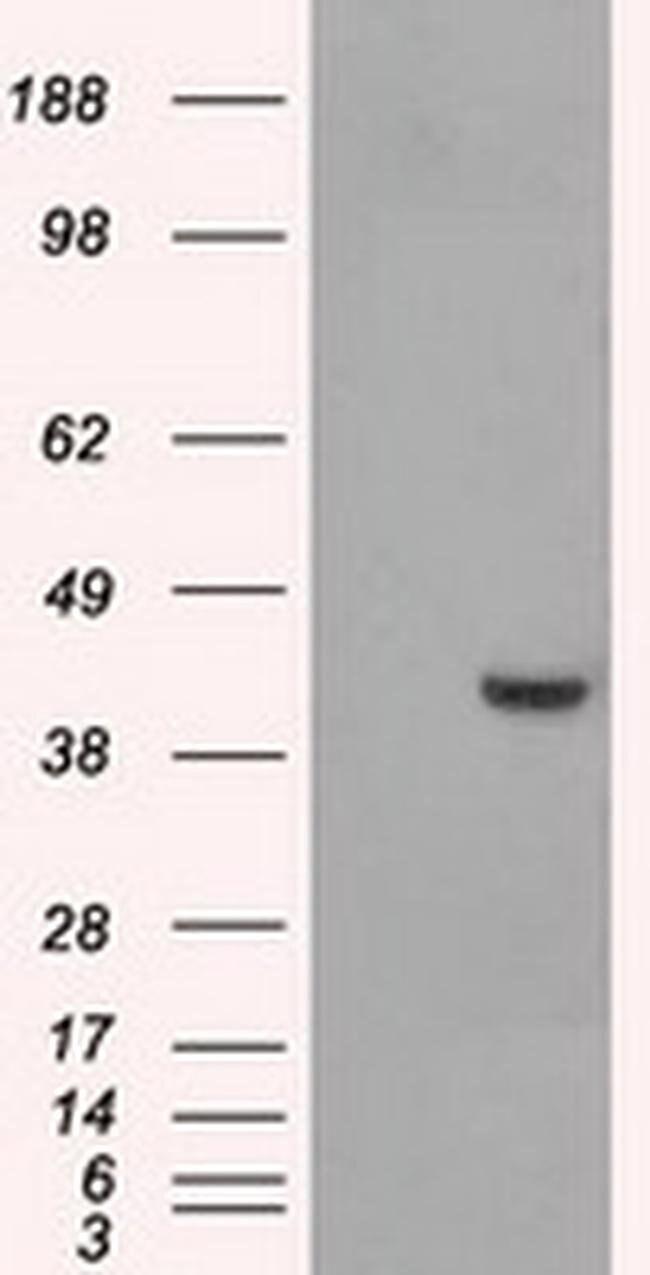 PPME1 Mouse anti-Human, Clone: OTI4A12, liquid, TrueMAB  100 µL; Unconjugated