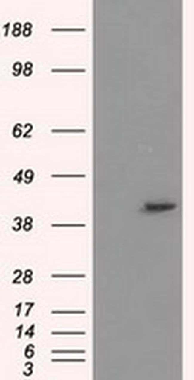 PPME1 Mouse anti-Human, Clone: OTI6H5, liquid, TrueMAB  100 µL; Unconjugated
