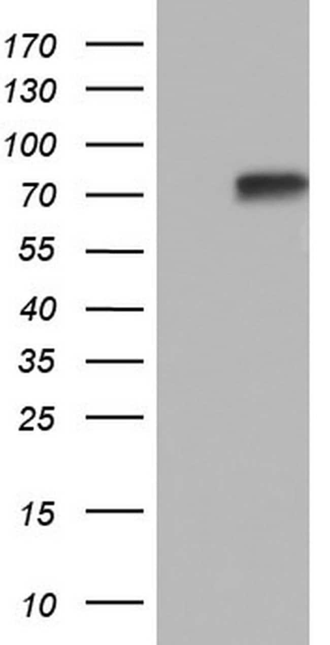 PPP2R5D Mouse anti-Human, Clone: OTI10D11, lyophilized, TrueMAB  100 µg;