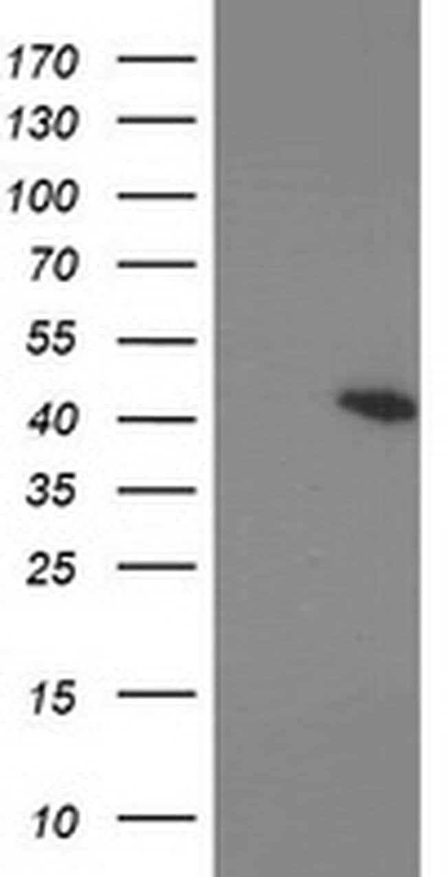 PRKAR1B Mouse anti-Human, Clone: OTI12E5, liquid, TrueMAB  100 µL;