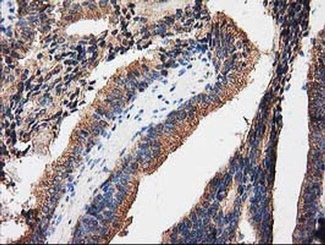 PRKAR2A Mouse anti-Human, Clone: OTI1F8, liquid, TrueMAB  30 µL; Unconjugated