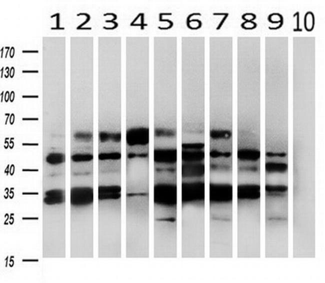 PRKAR2A Mouse anti-Canine, Human, Rat, Clone: OTI5F1, liquid, TrueMAB