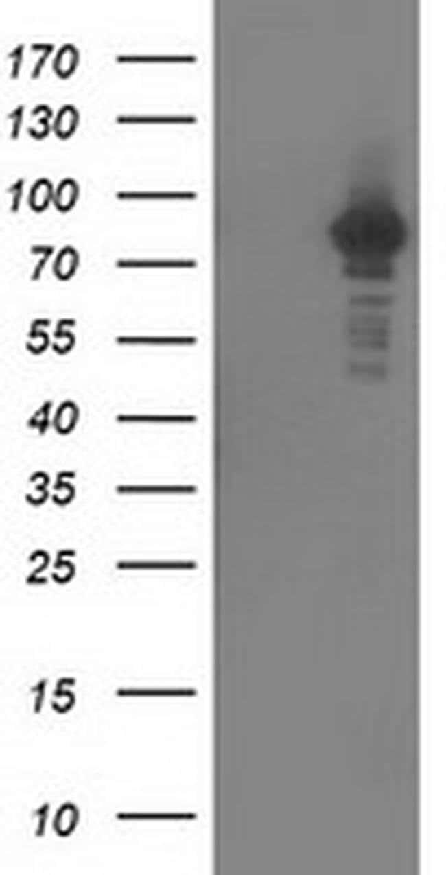 PRKCE Mouse anti-Human, Clone: OTI1G5, liquid, TrueMAB  100 µL; Unconjugated