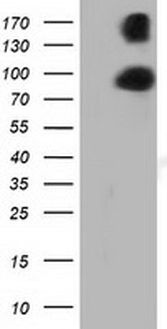 PRKD2 Mouse anti-Human, Clone: OTI3A1, liquid, TrueMAB  100 µL; Unconjugated