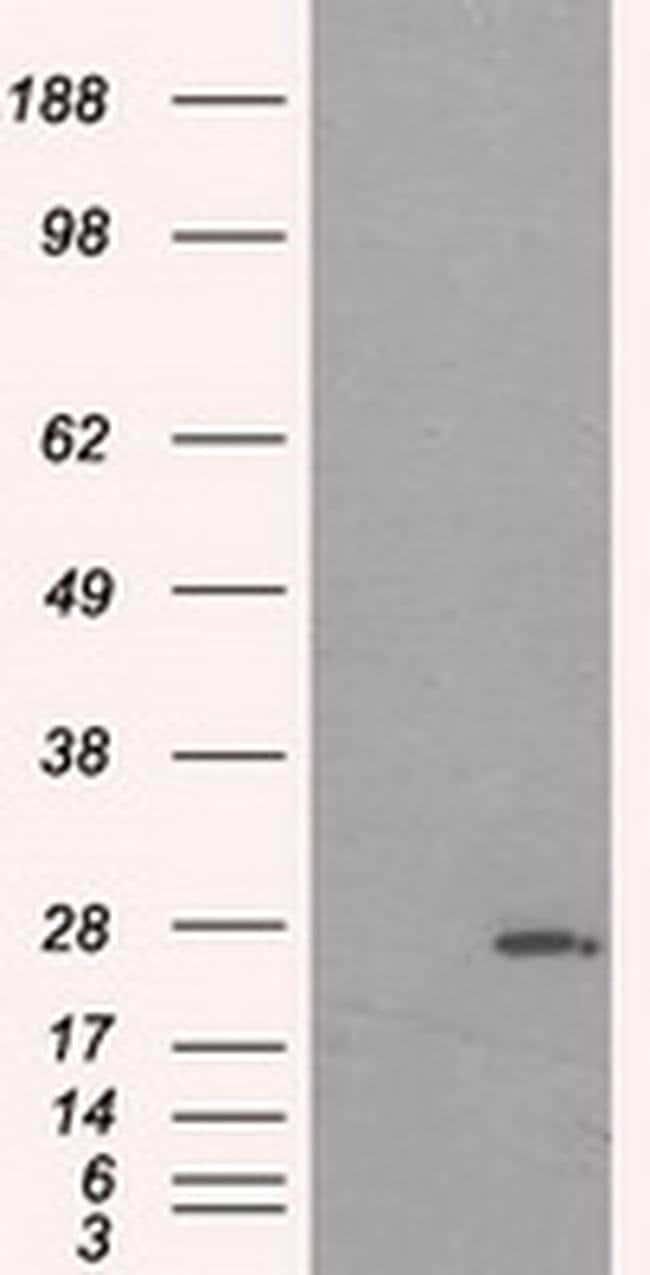 PRL Mouse anti-Human, Clone: OTI2E4, liquid, TrueMAB  100 µL; Unconjugated