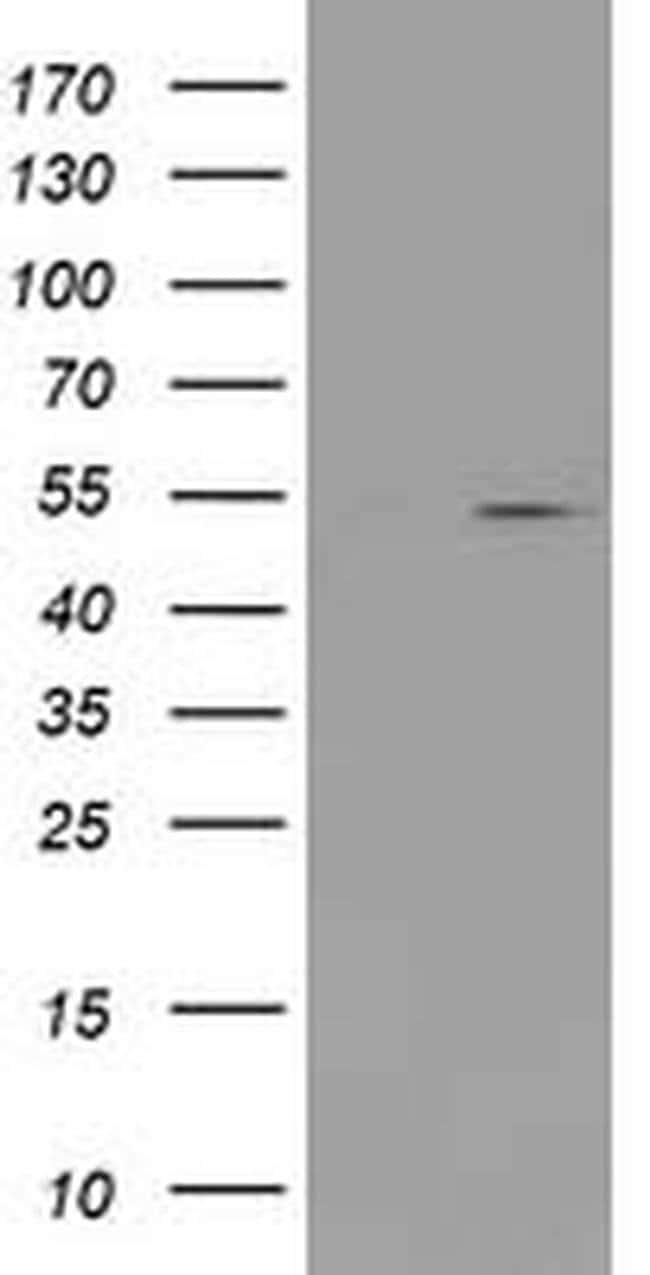 PRMT2 Mouse anti-Human, Clone: OTI5D10, liquid, TrueMAB  100 µL; Unconjugated