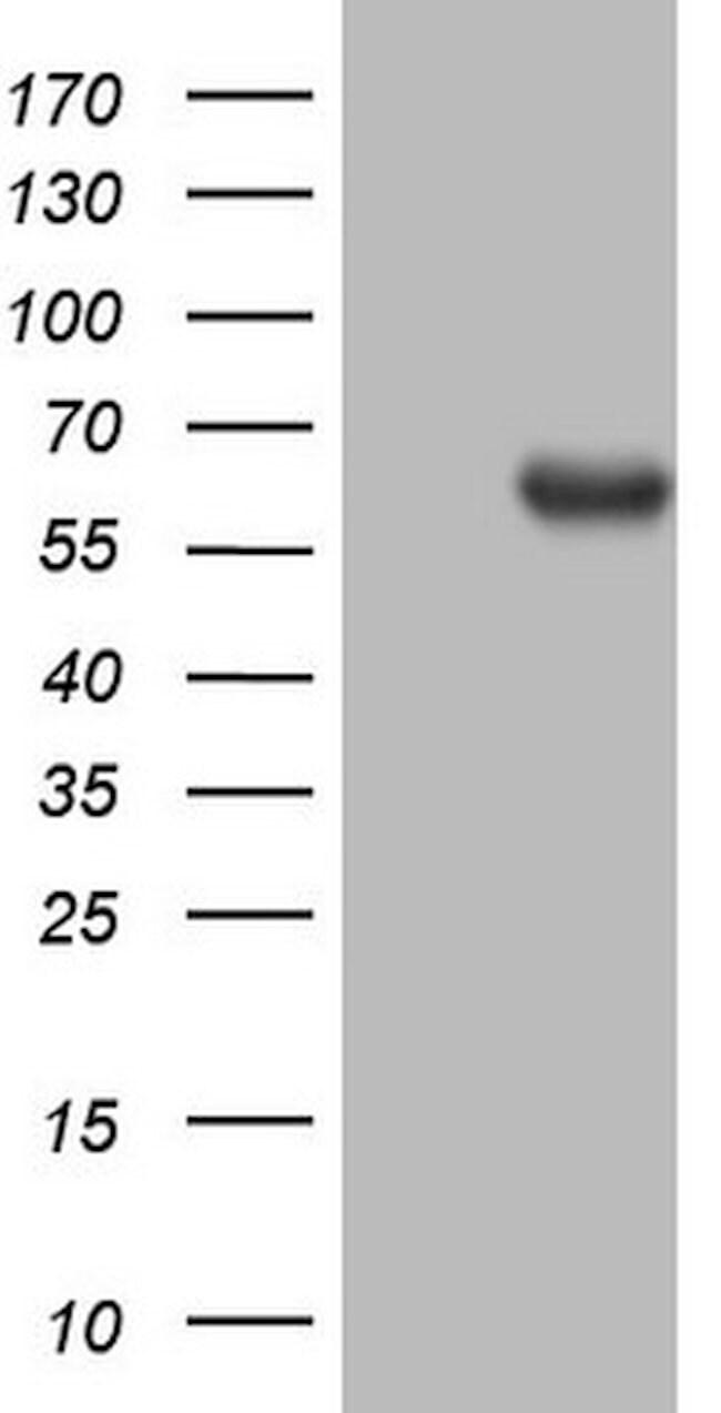 PROZ Mouse anti-Human, Clone: OTI3A11, lyophilized, TrueMAB  100 µg;