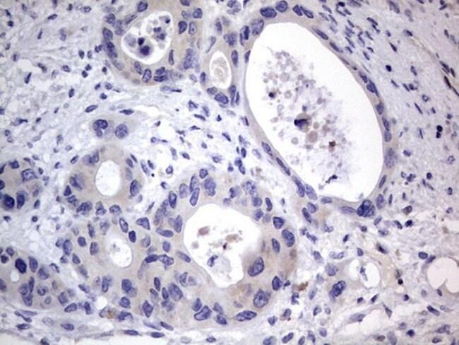 PRRX1 Mouse anti-Human, Clone: OTI1E10, lyophilized, TrueMAB  100 µg;