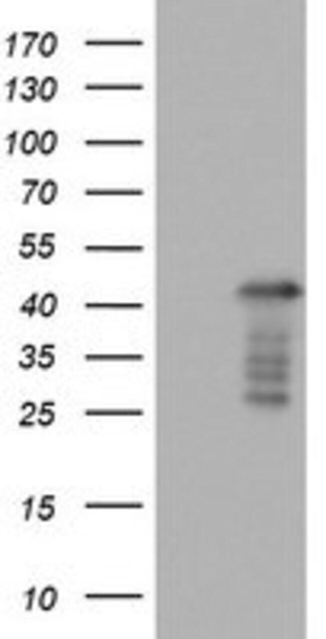 PRRX1 Mouse anti-Human, Clone: OTI1F8, lyophilized, TrueMAB  100 µg;