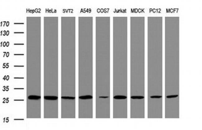 PSMA2 Mouse anti-Human, Clone: OTI3E9, liquid, TrueMAB  100 µL; Unconjugated