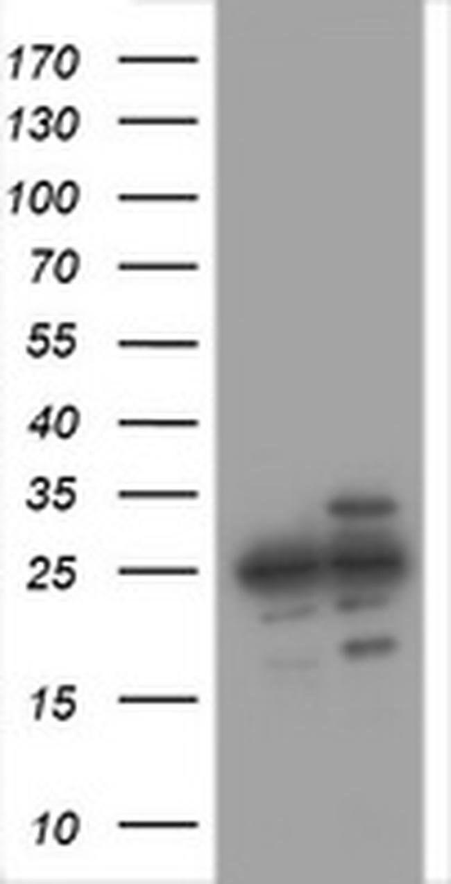 PSMA2 Mouse anti-Human, Clone: OTI3H8, liquid, TrueMAB  100 µL; Unconjugated