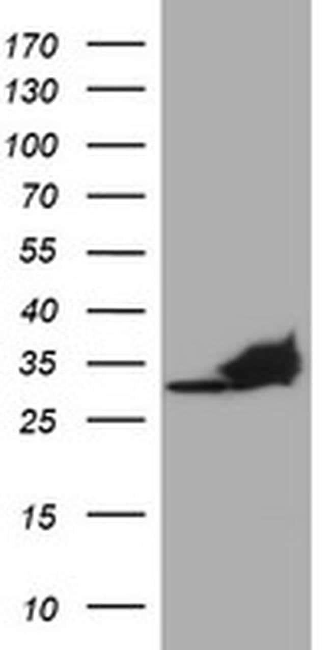 PSMA4 Mouse anti-Canine, Human, Mouse, Rat, Clone: OTI1H10, liquid, TrueMAB