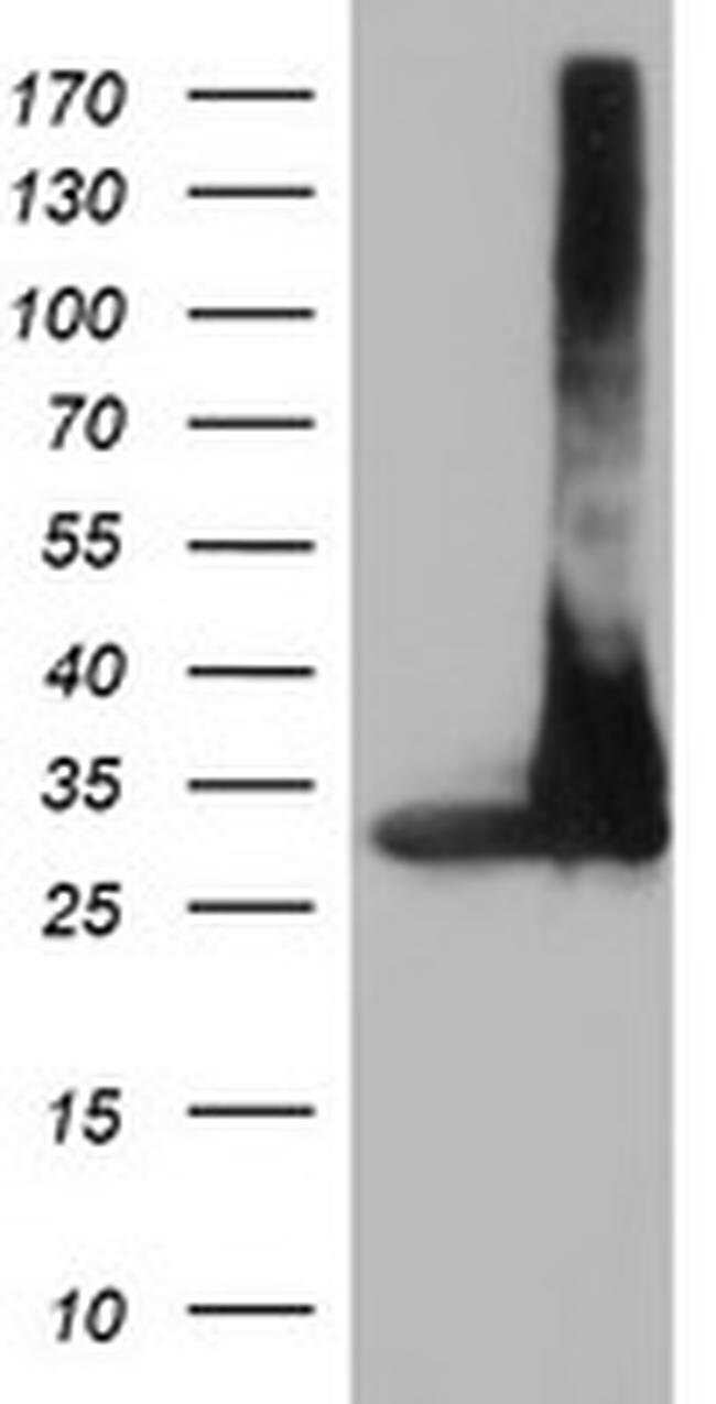 PSMA4 Mouse anti-Canine, Human, Mouse, Rat, Clone: OTI5D8, liquid, TrueMAB