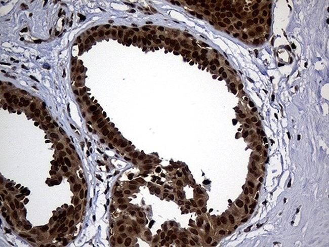 PSMA7 Mouse anti-Human, Clone: OTI5F6, lyophilized, TrueMAB  100 µg;