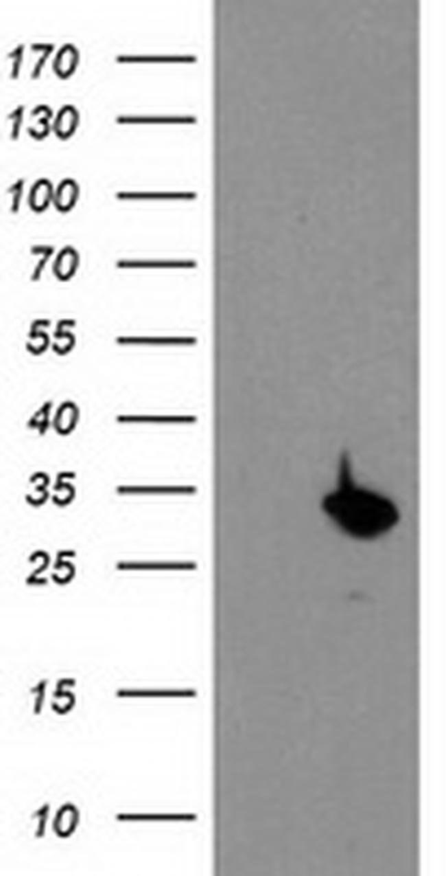 PSMB4 Mouse anti-Human, Clone: OTI2C9, liquid, TrueMAB  100 µL; Unconjugated