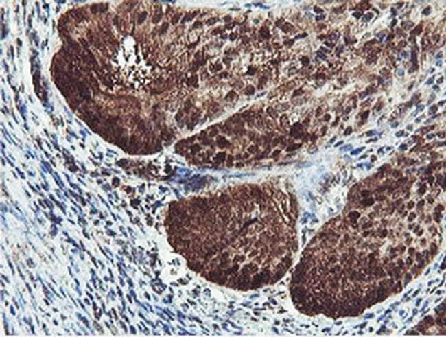 PSMB7 Mouse anti-Human, Mouse, Clone: OTI1E1, liquid, TrueMAB  100 µL;
