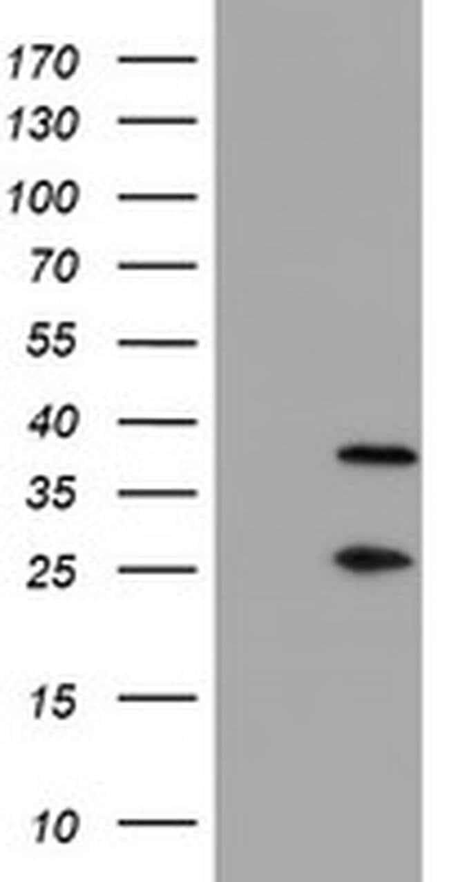 PSMB7 Mouse anti-Human, Mouse, Clone: OTI1E1, liquid, TrueMAB  30 µL;