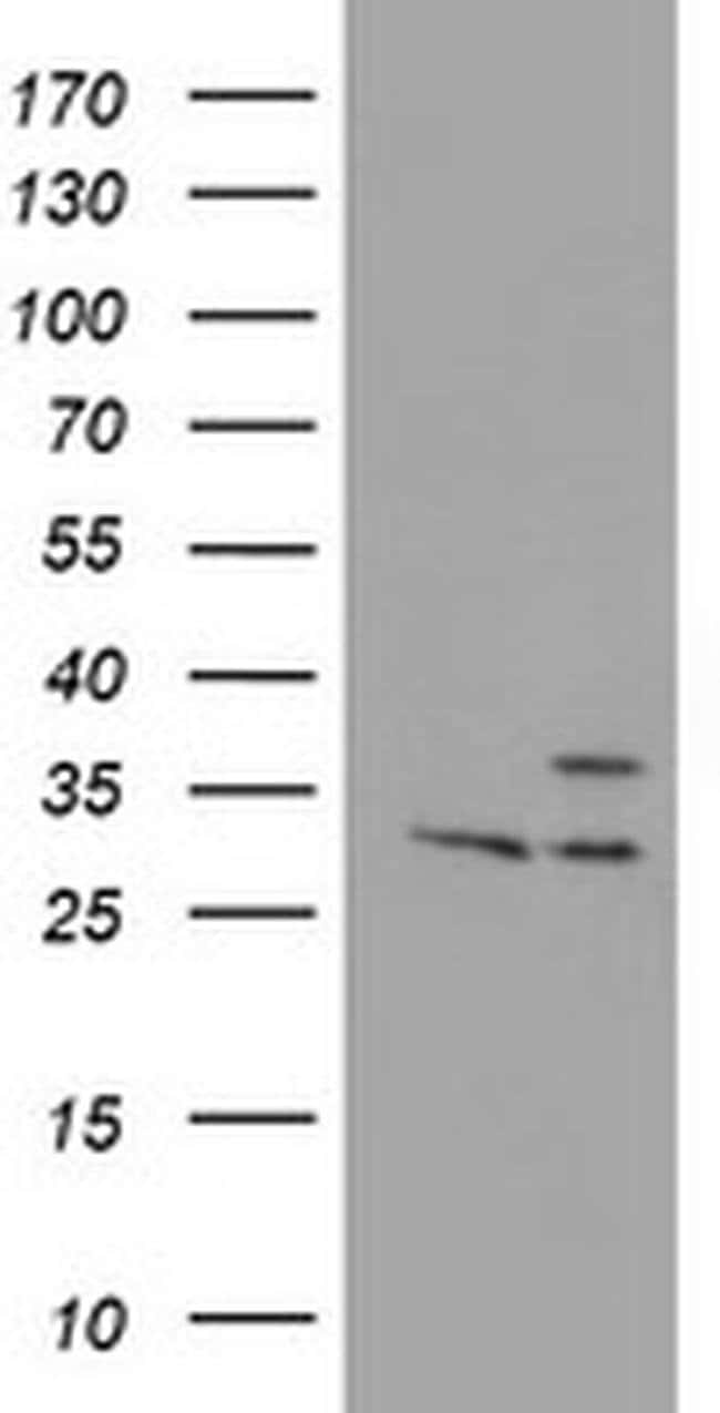 PSMB7 Mouse anti-Human, Mouse, Clone: OTI1B2, liquid, TrueMAB  100 µL;