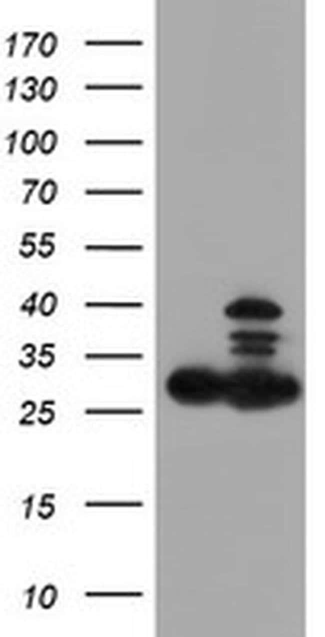 PSMB7 Mouse anti-Canine, Human, Mouse, Rat, Clone: OTI4E3, liquid, TrueMAB