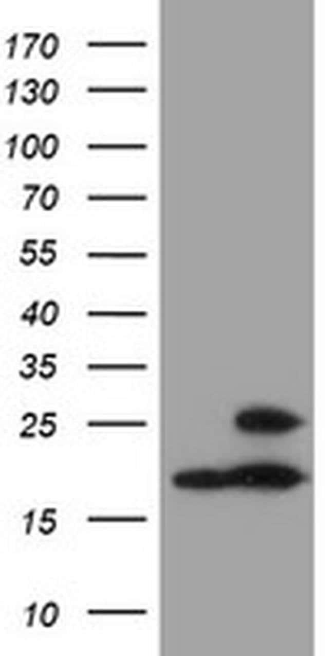 PSMB9 Mouse anti-Canine, Human, Mouse, Rat, Clone: OTI3F3, liquid, TrueMAB