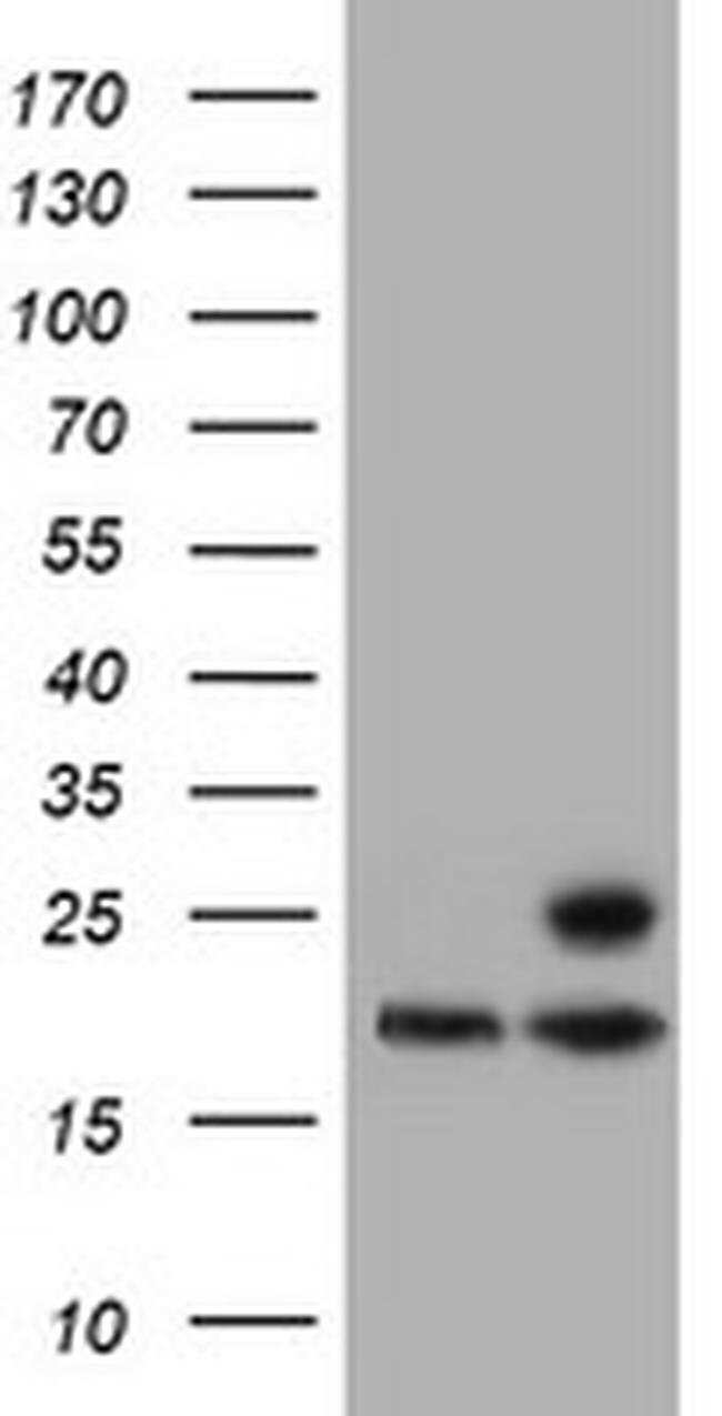 PSMB9 Mouse anti-Canine, Human, Mouse, Rat, Clone: OTI2B6, liquid, TrueMAB