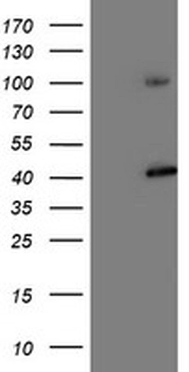 PSMD2 Mouse anti-Canine, Human, Mouse, Rat, Clone: OTI1G6, liquid, TrueMAB