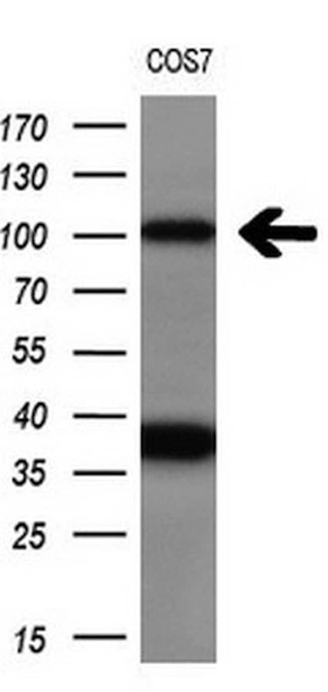PSMD2 Mouse anti-Human, Clone: OTI1E7, liquid, TrueMAB  100 µL; Unconjugated