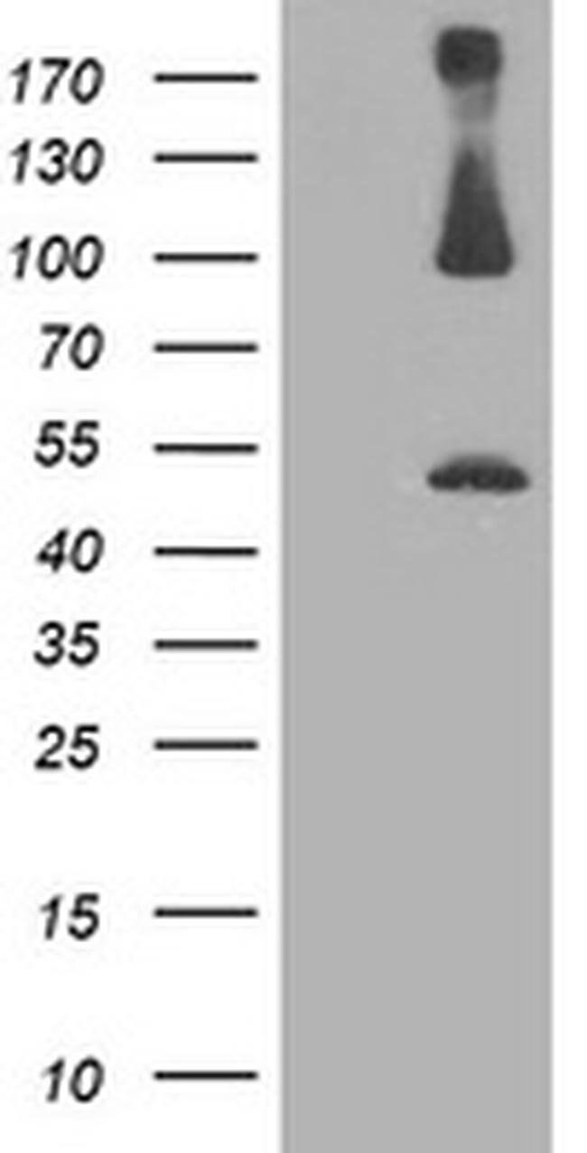 PSMD2 Mouse anti-Canine, Human, Mouse, Rat, Clone: OTI1G8, liquid, TrueMAB