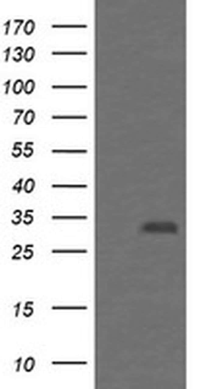 PSMF1 Mouse anti-Human, Clone: OTI2D7, liquid, TrueMAB  100 µL; Unconjugated