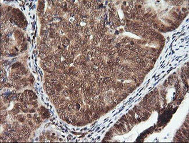PTK2 Mouse anti-Human, Clone: OTI4A8, liquid, TrueMAB  100 µL; Unconjugated