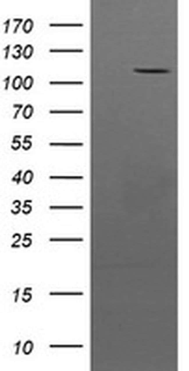 PTK7 Mouse anti-Human, Clone: OTI2H4, liquid, TrueMAB  100 µL; Unconjugated