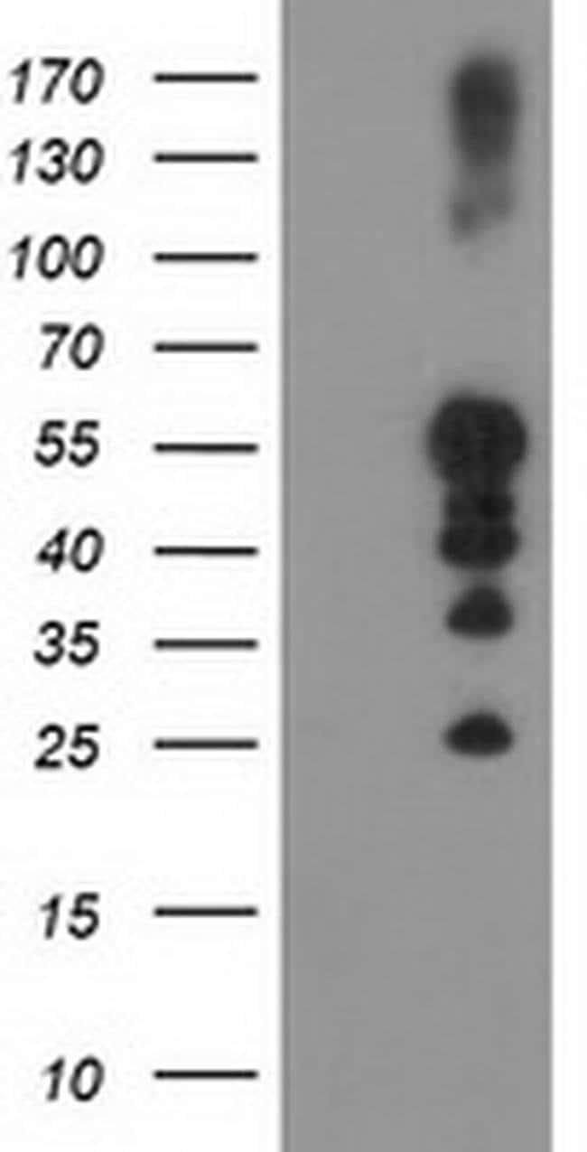 PTPN1 Mouse anti-Human, Clone: OTI2G3, liquid, TrueMAB  100 µL; Unconjugated