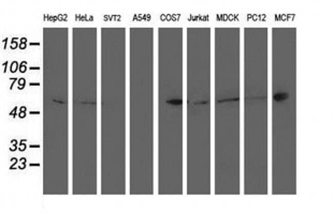 PTPN1 Mouse anti-Canine, Human, Clone: OTI1D10, liquid, TrueMAB  100 µL;
