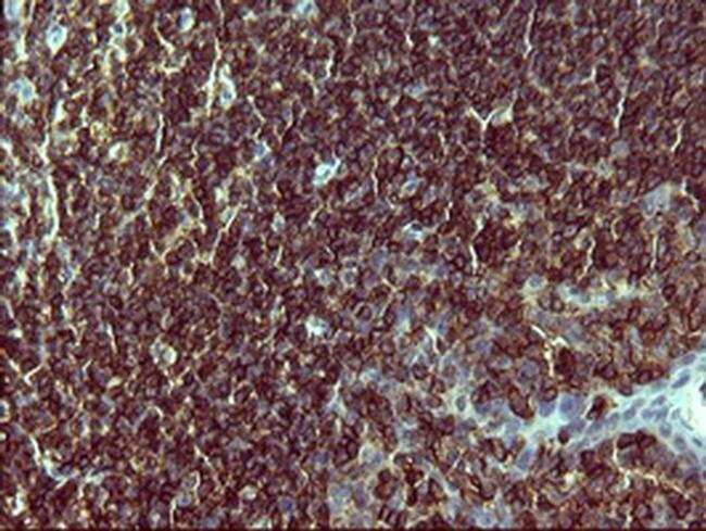 PTPRC Mouse anti-Human, Clone: OTI1B6, liquid, TrueMAB  100 µL; Unconjugated