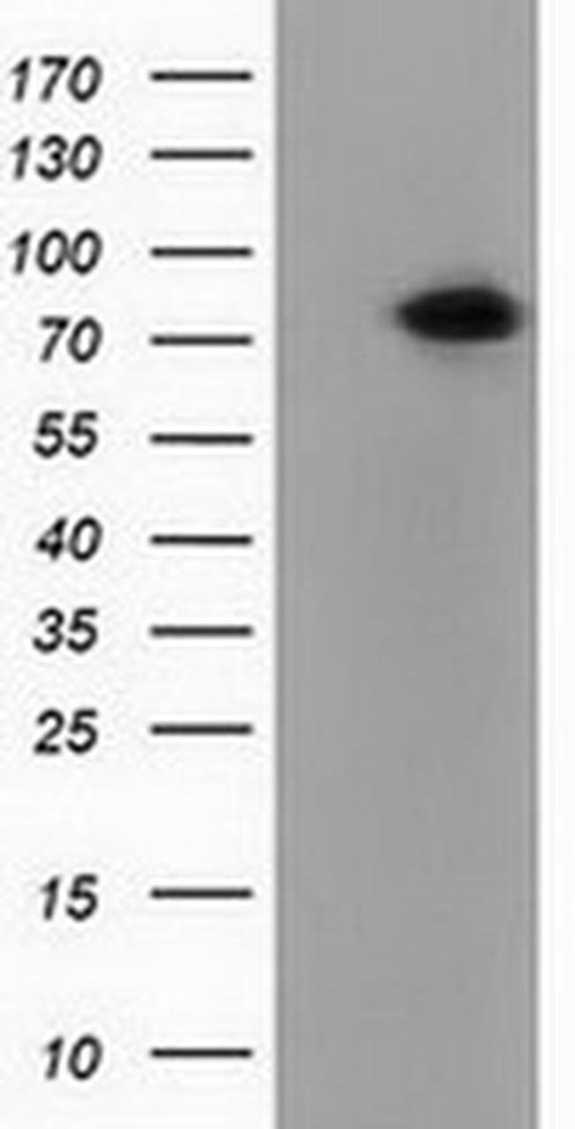 PUS7 Mouse anti-Human, Clone: OTI4A2, liquid, TrueMAB  100 µL; Unconjugated